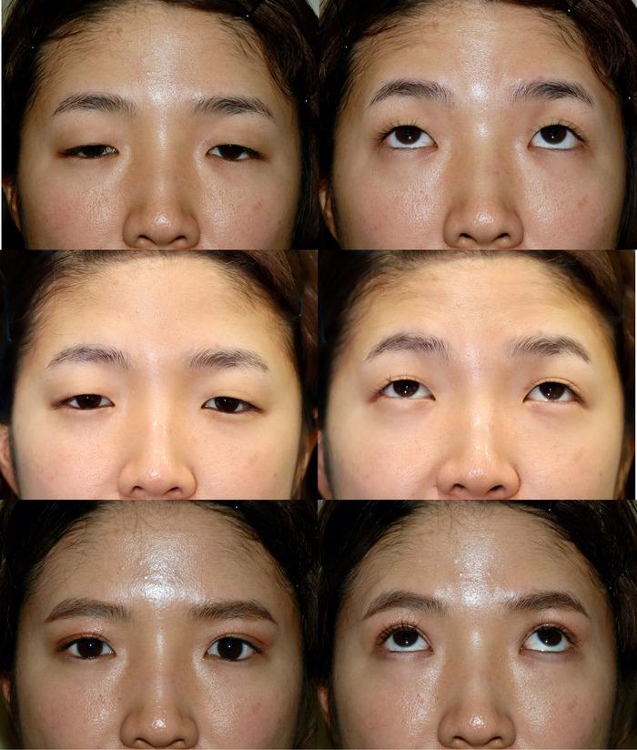 眼瞼下垂結膜 二重埋没法