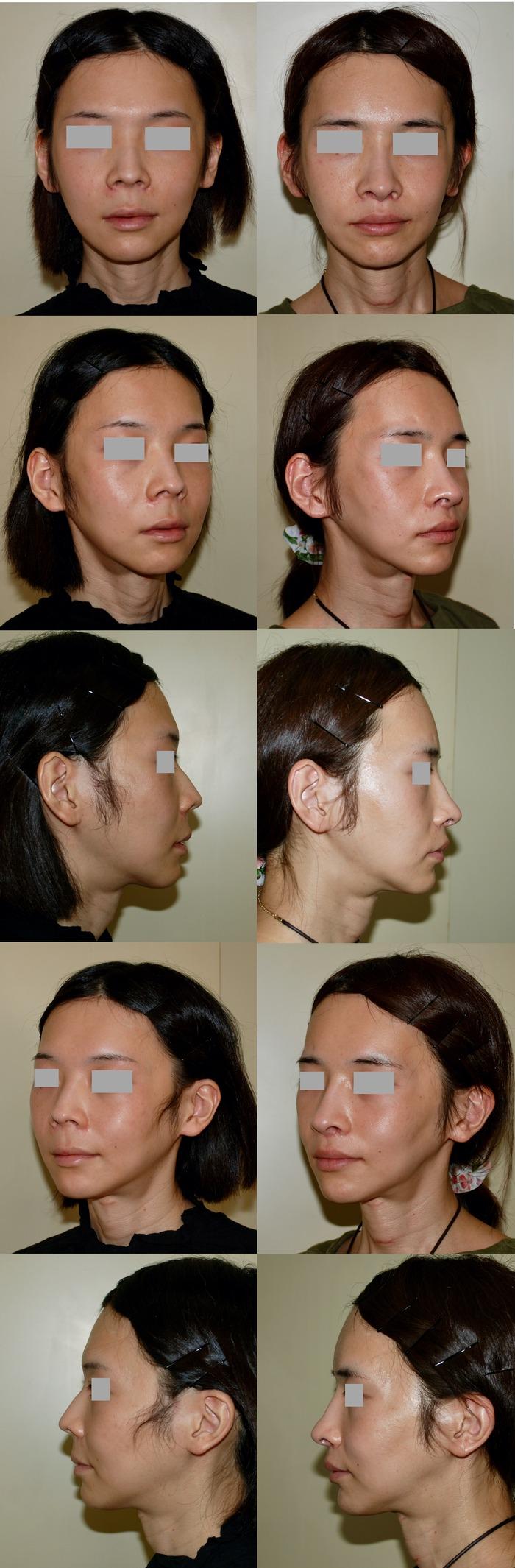 鼻中隔延長術 鼻骨骨切り術 鼻下長短縮術 口角挙上術 術後3か月