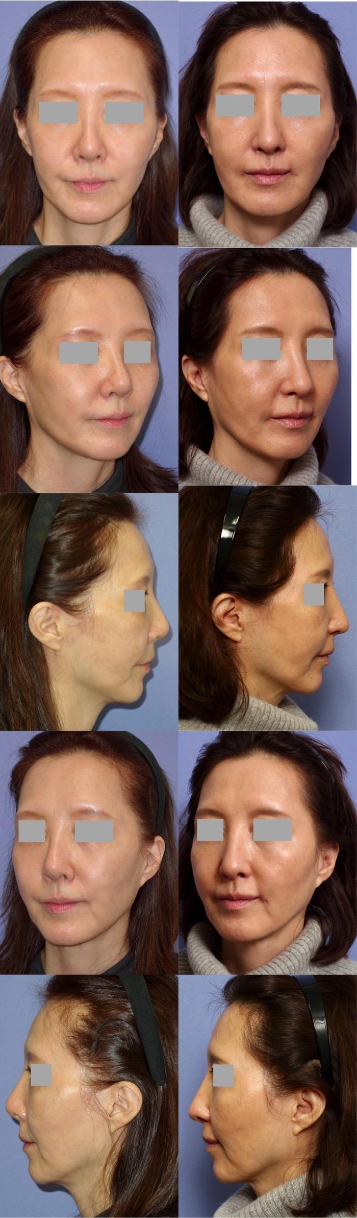 鼻中隔延長術 隆鼻術 鼻翼挙上術 口角挙上術 術後2ヶ月