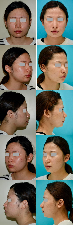 鼻中隔延長術 隆鼻術 術後3か月