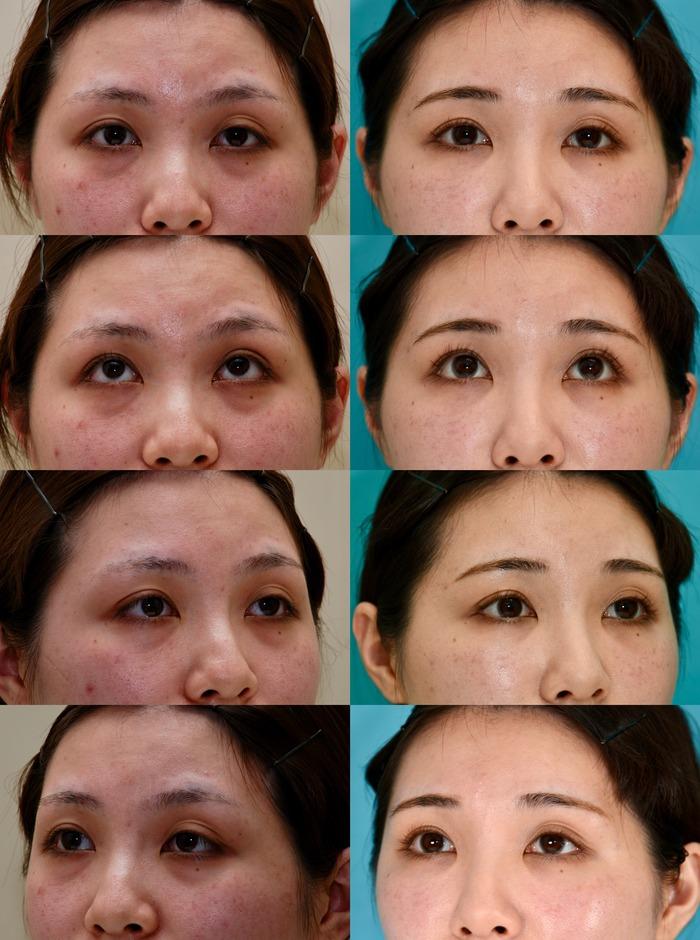 下眼瞼軽結膜ハムラ法 脂肪注入 術後14ヶ月