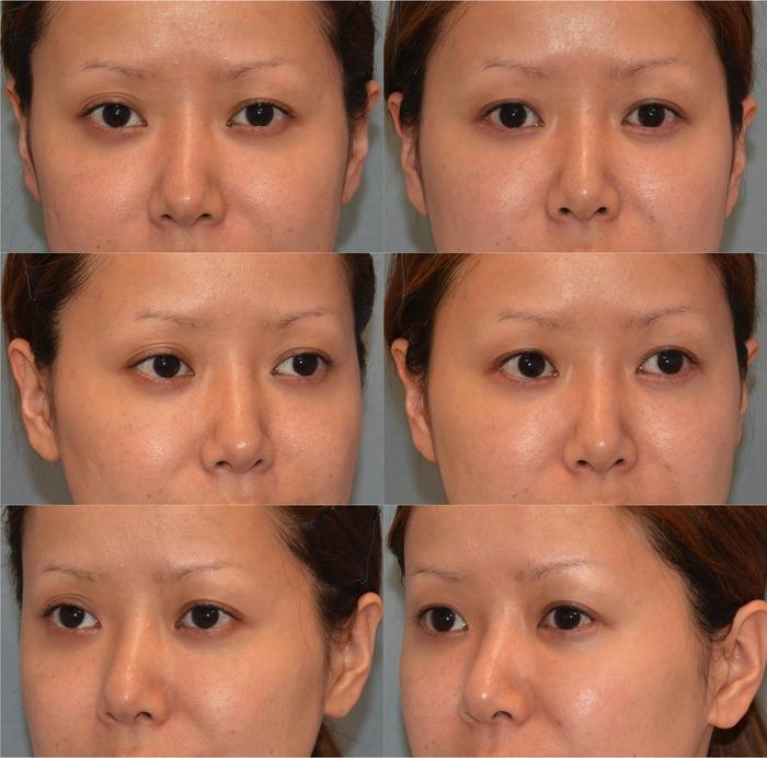 下眼瞼ハムラ法 眼瞼下垂(経結膜)