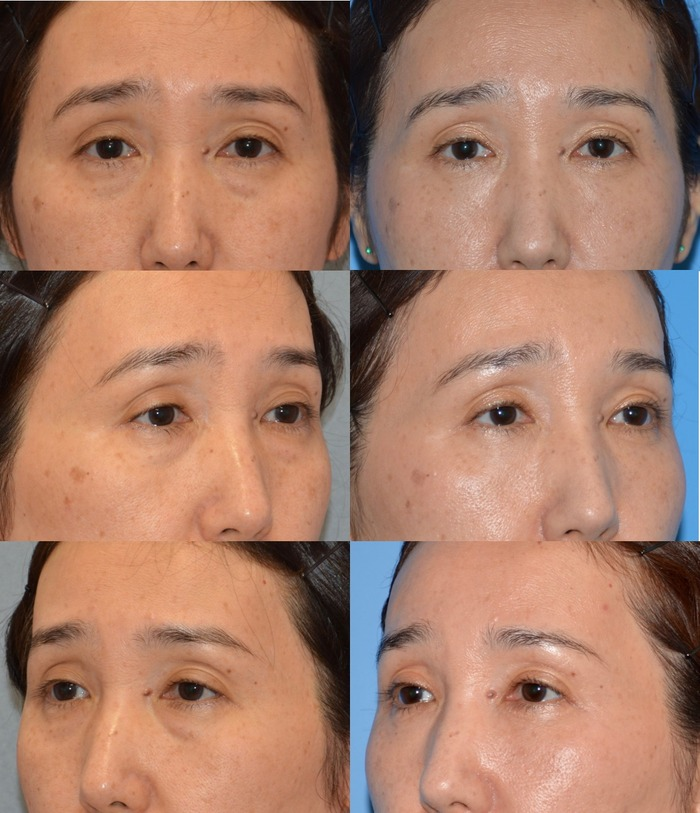 下眼瞼経結膜ハムラ法 術後4ヶ月