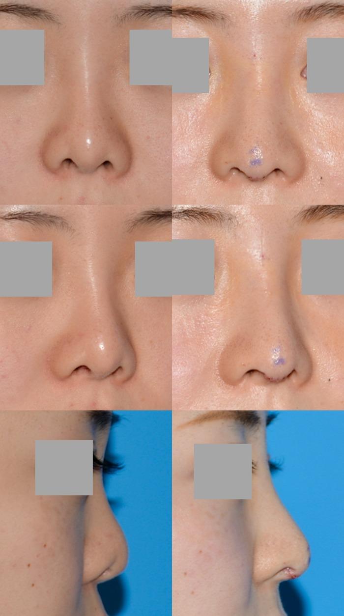 鼻中隔延長術、隆鼻術シリコン入れ替え、他院修正 拡大像