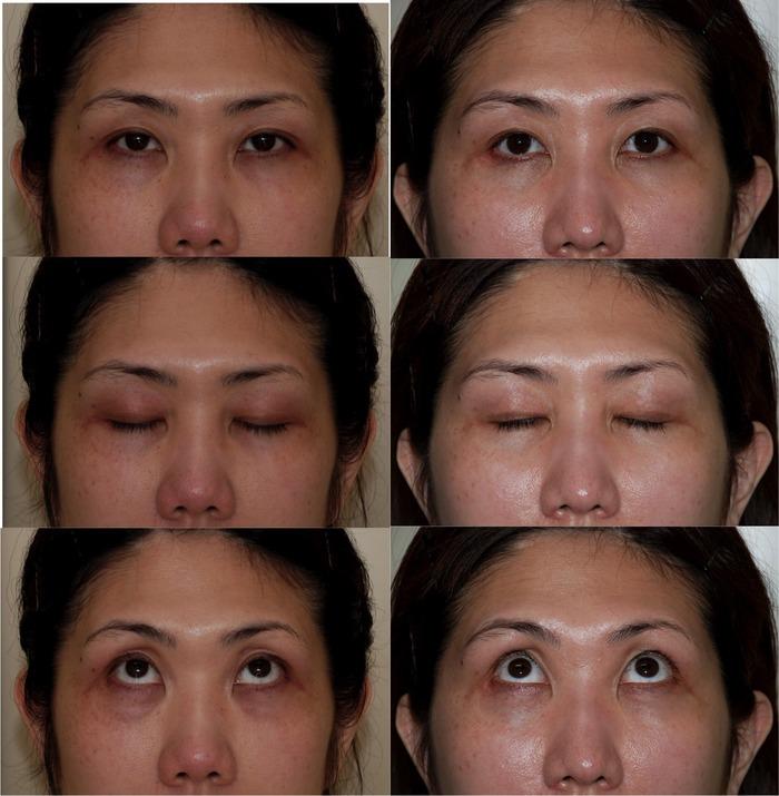 眼瞼下垂 下眼瞼ハムラ法