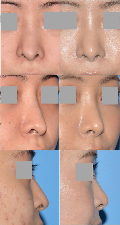 鼻修正術後 拡大像