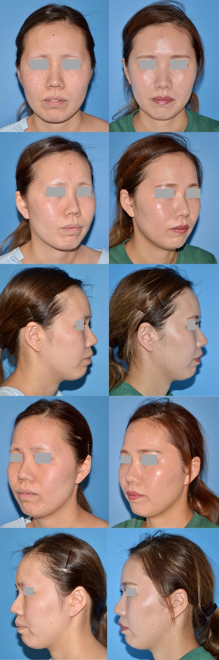 鼻柱軟骨移植 鼻翼縮小術 術後3ヶ月