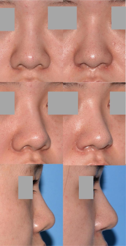 鼻中隔延長 鼻翼挙上 鼻翼縮小 鼻プロ 拡大5ヶ月