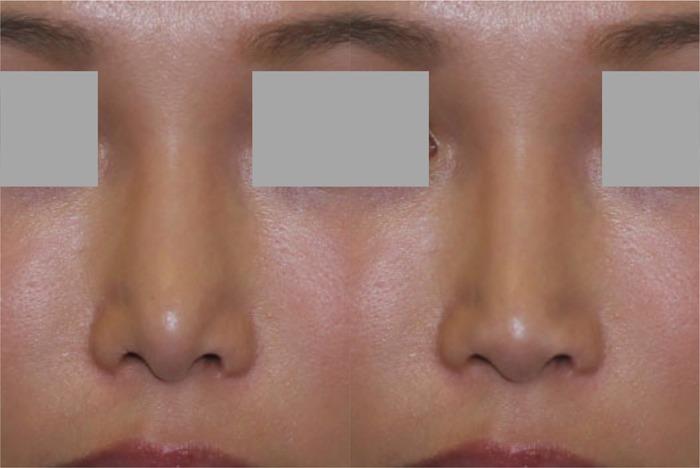 鼻2Dシミュレーション正面