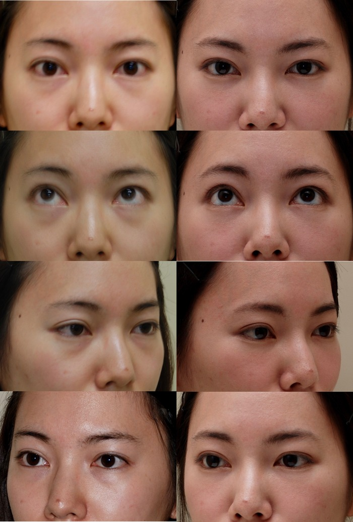 下眼瞼経結膜ハムラ法 1ヶ月