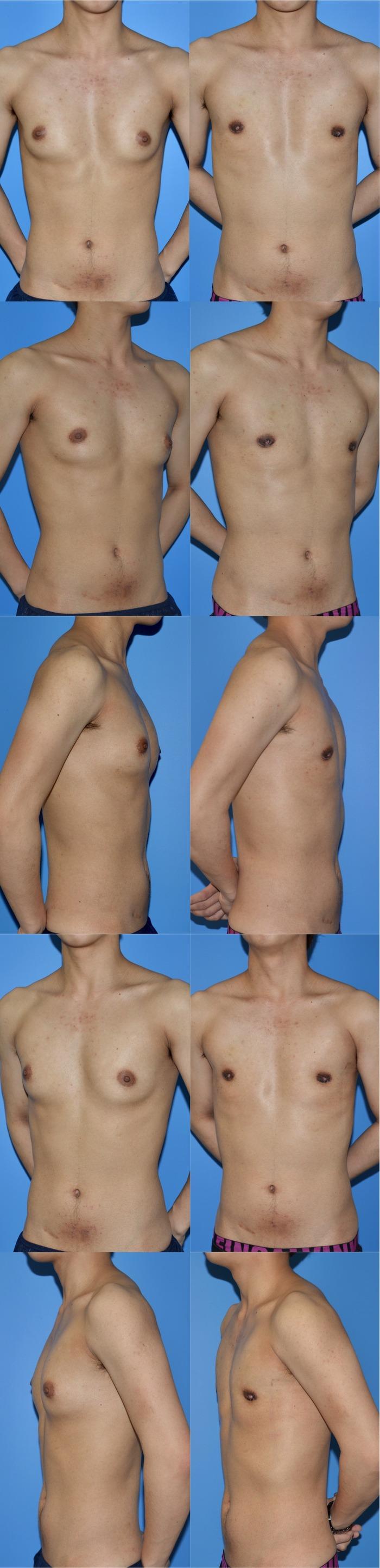 乳腺切除ym 術後1ヶ月