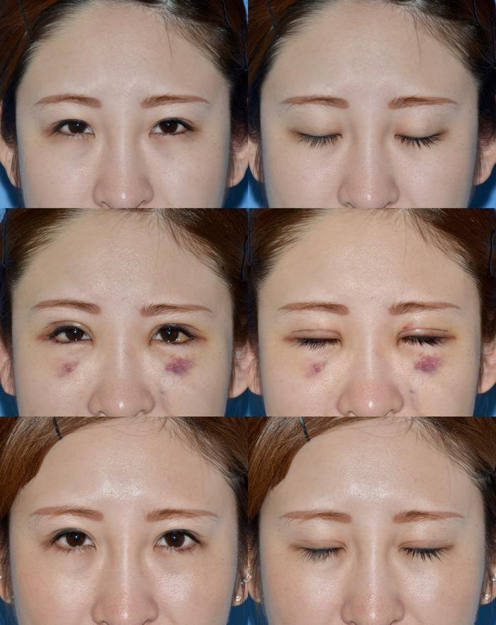 眼瞼下垂 下眼瞼下制術後3ヶ月