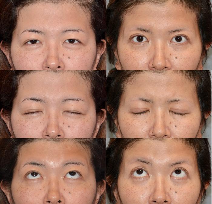 眼瞼下垂 眉毛下切開 二重切開 術後3ヶ月