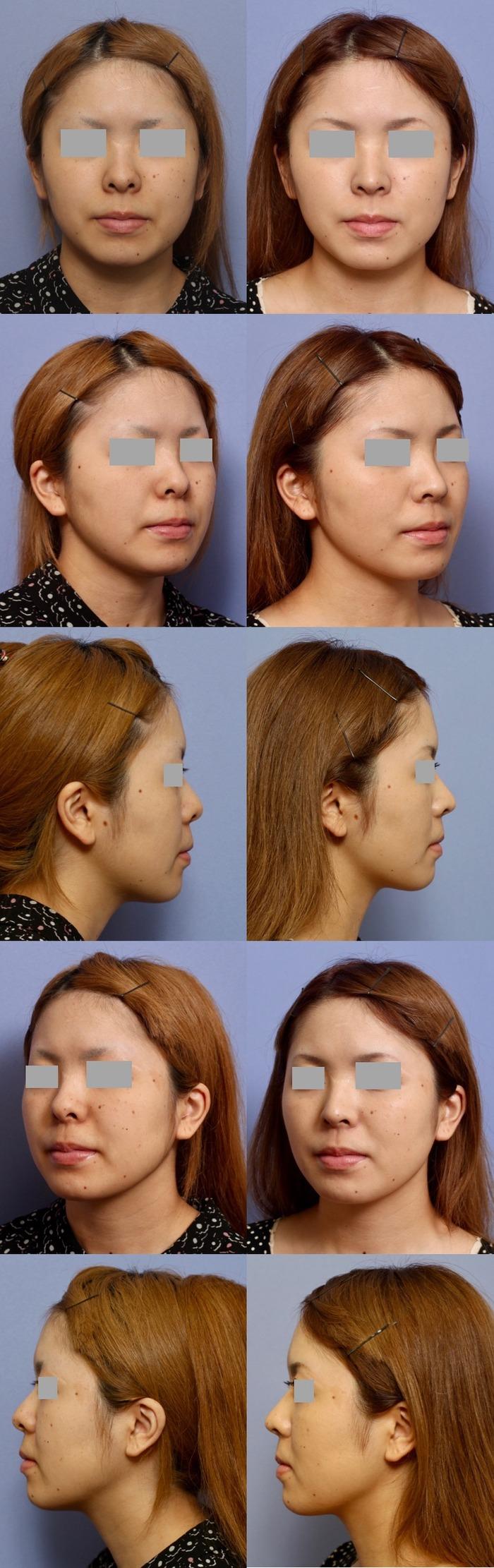 鼻尖縮小術 鼻孔縁下降術 術後1ヶ月