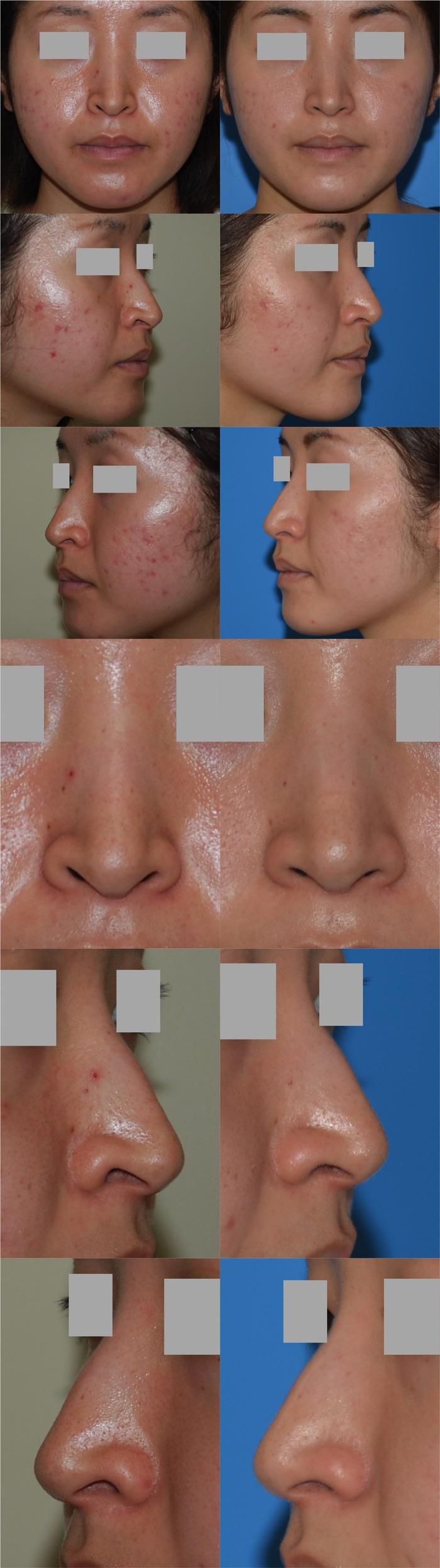 鼻孔縁下降術y