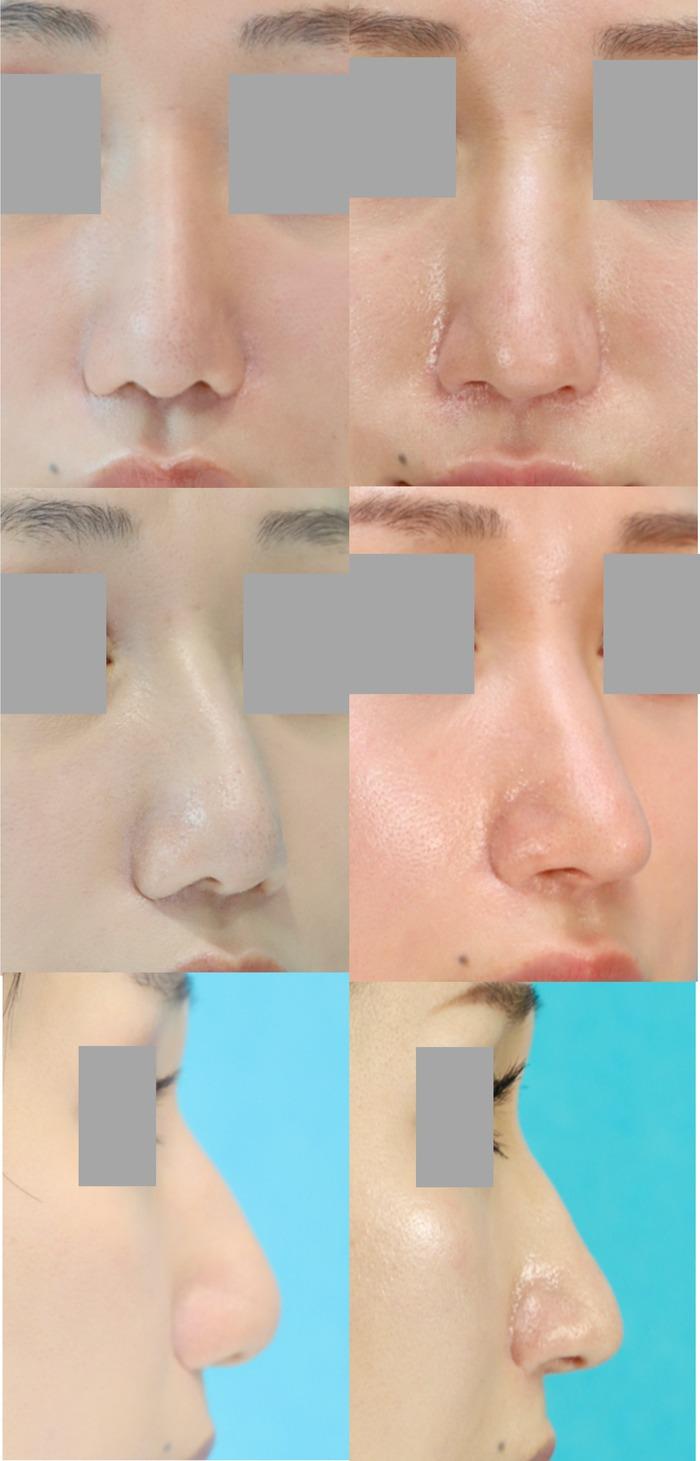 鼻中隔延長術 術後10ヶ月 拡大