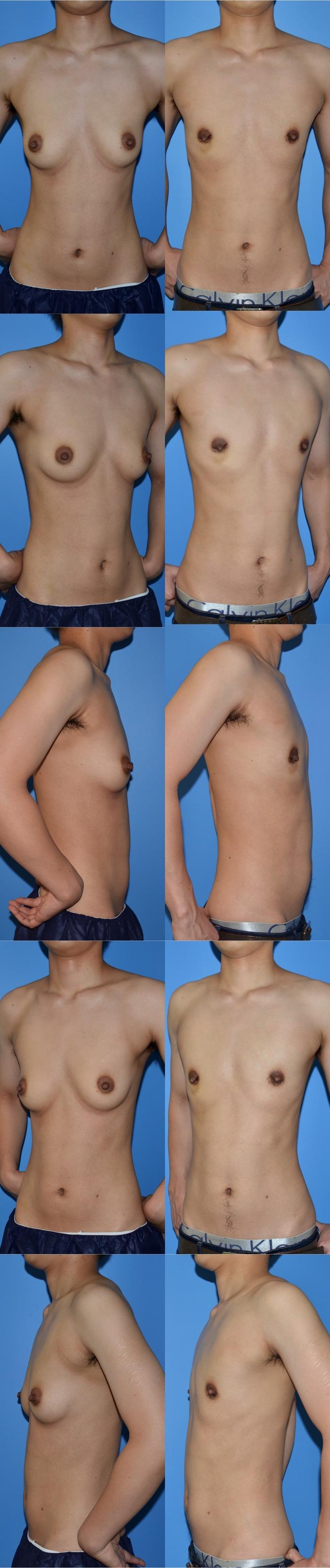 乳腺切除nh1年1ヶ月