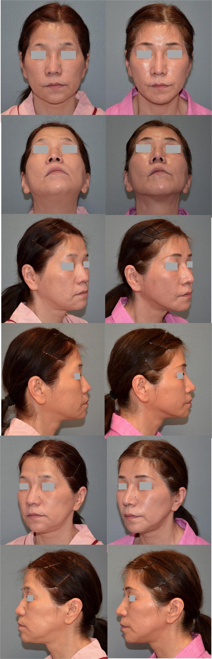 鼻中隔延長術 鼻プロテーゼ入れ替え