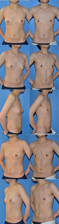乳腺切除ny 術後1ヶ月