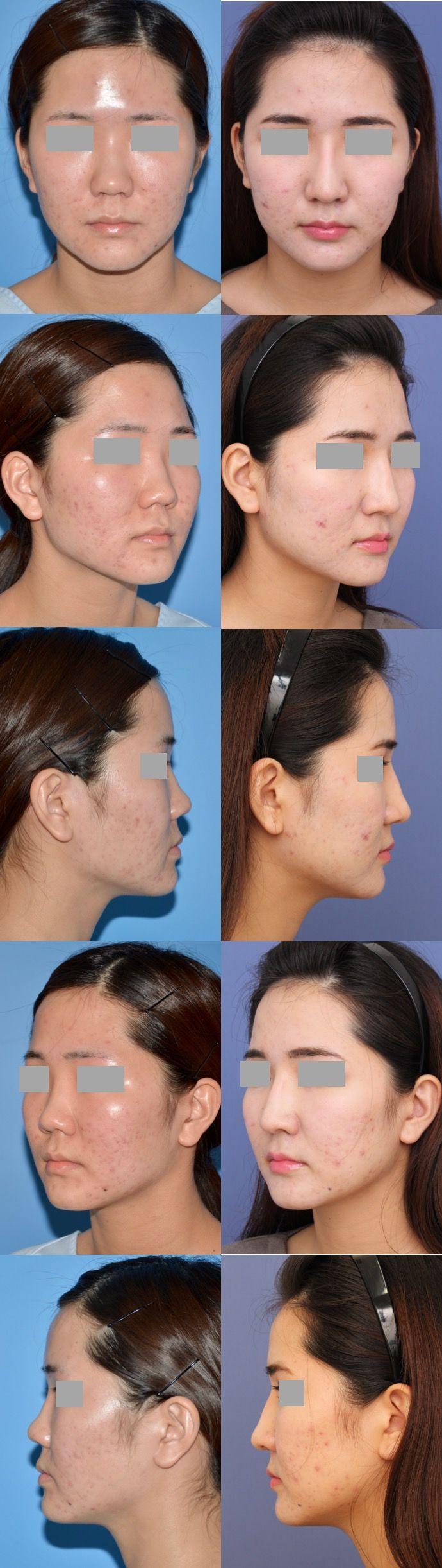 鼻中隔延長術 隆鼻術 術後8ヶ月