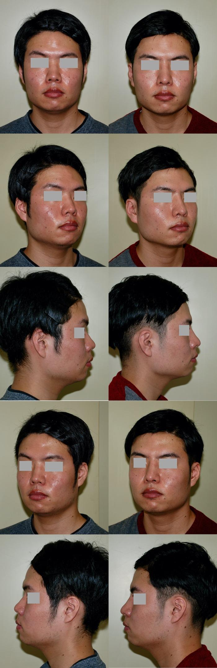 鼻中隔延長 隆鼻術 術後3か月