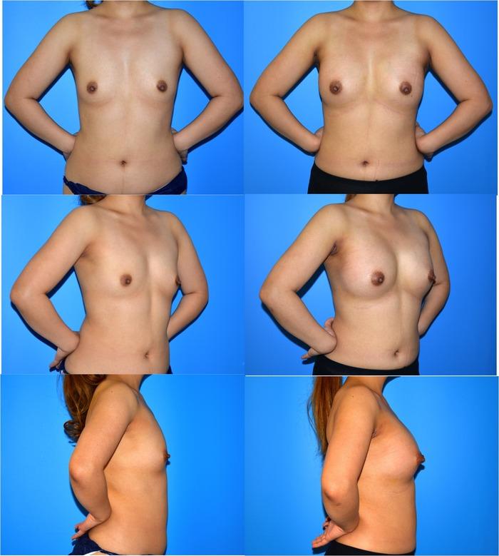 乳房増大術