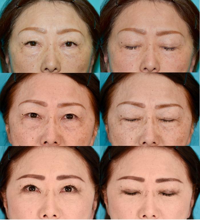 眉毛下切開、下眼瞼経結膜ハムラ法 正面 経過