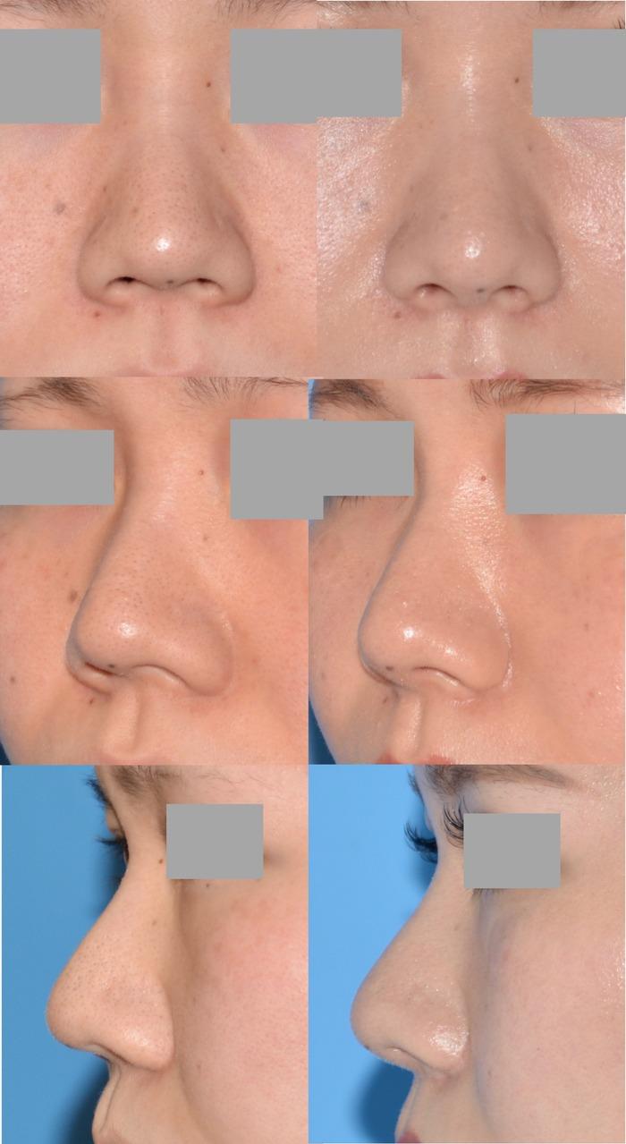 鼻柱軟骨移植 鼻翼縮小術 術後3ヶ月 拡大