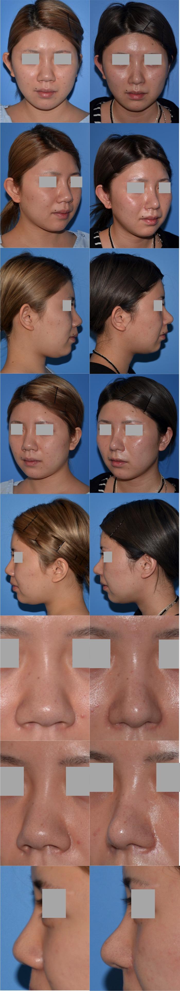 鼻中隔延長術 鼻骨骨切り術 鼻翼縮小術