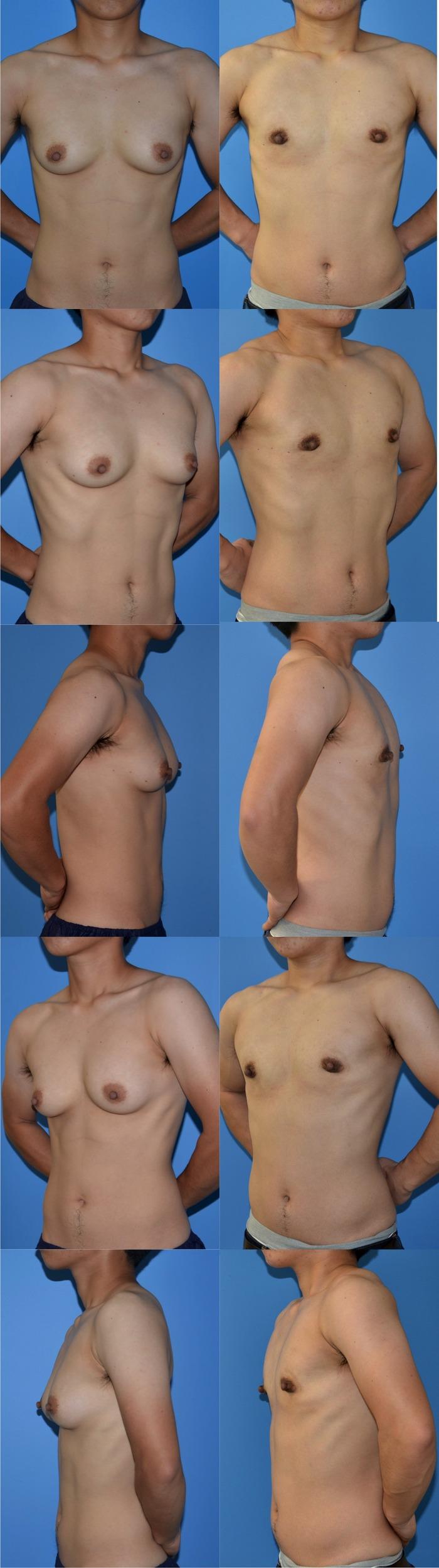 乳腺切除術md7ヶ月