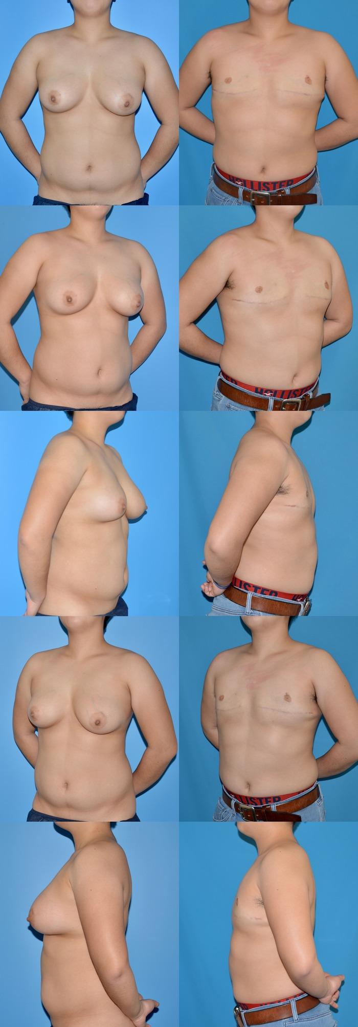 乳房切断術 乳輪乳頭移植
