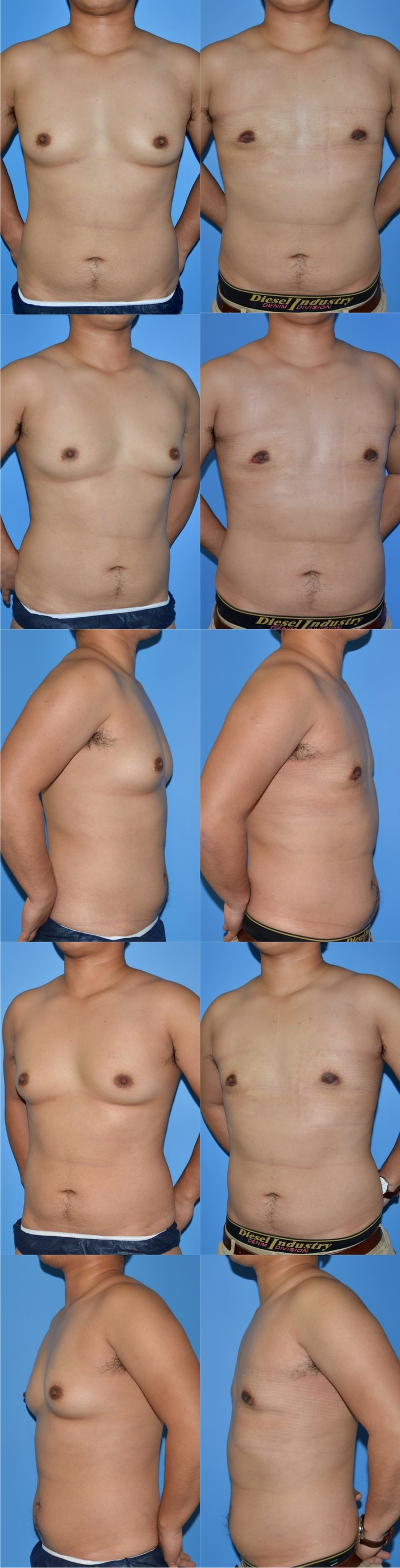 乳腺切除術iy 術後2ヶ月