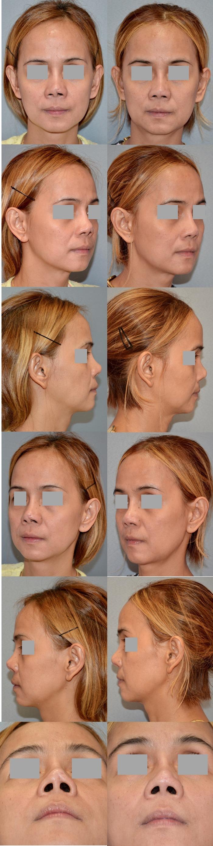 鼻瘢痕修正 術後8ヶ月