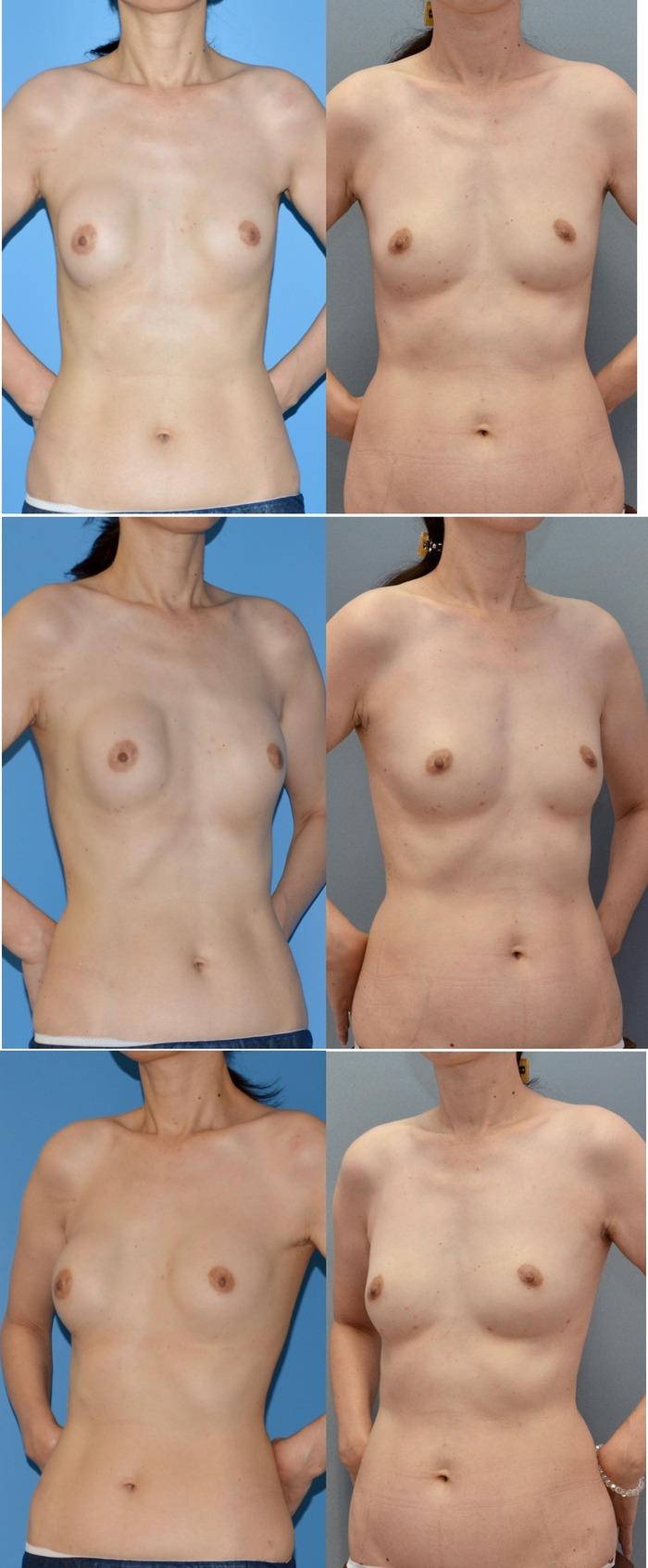 シリコンバッグ除去 脂肪注入 ピュアグラフト豊胸術 術後3ヶ月