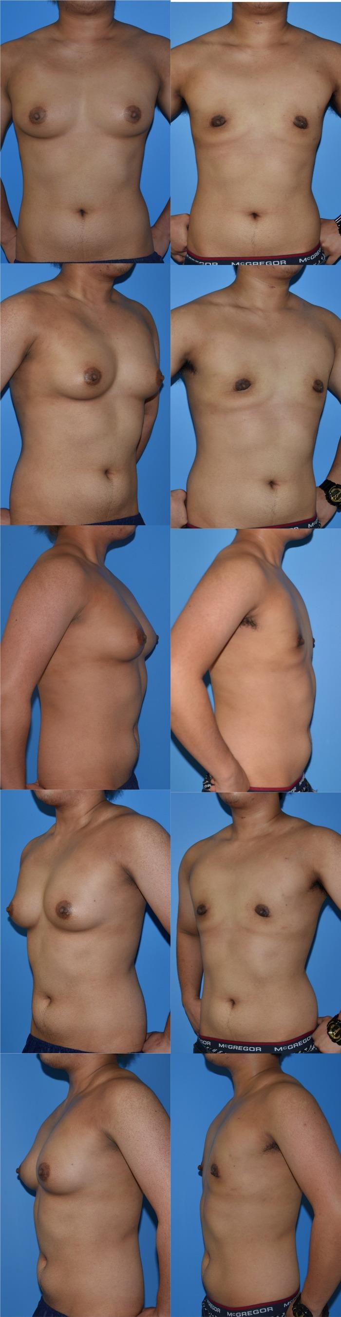 乳腺切除術y