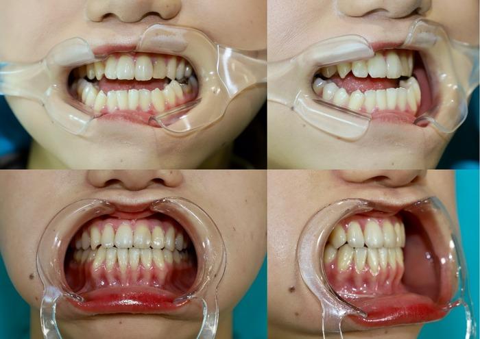 下顎矢状分割骨切り術 術後7ヶ月 口腔内