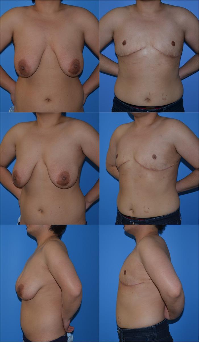 乳房切断 乳輪乳頭移植 術後3ヶ月