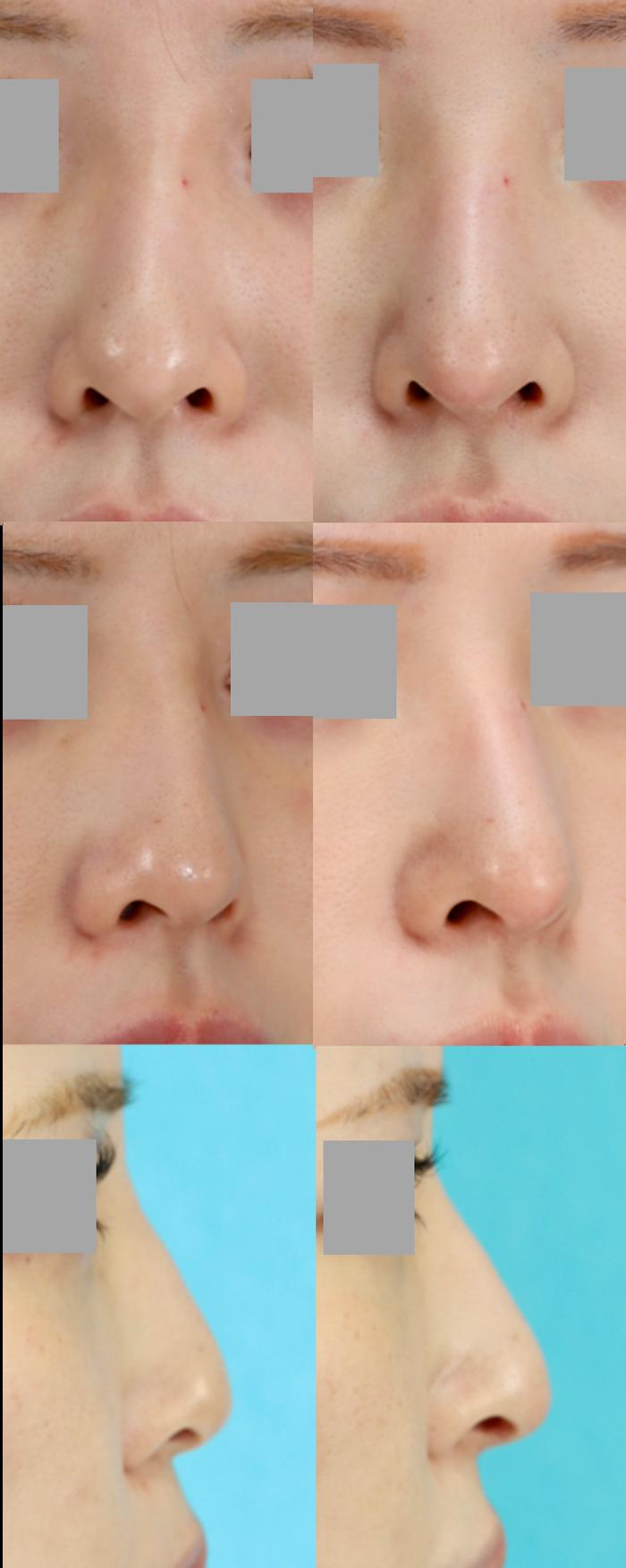 鼻中隔延長術 隆鼻術 シリコンプロテーゼ入替え 術後3ヶ月 拡大