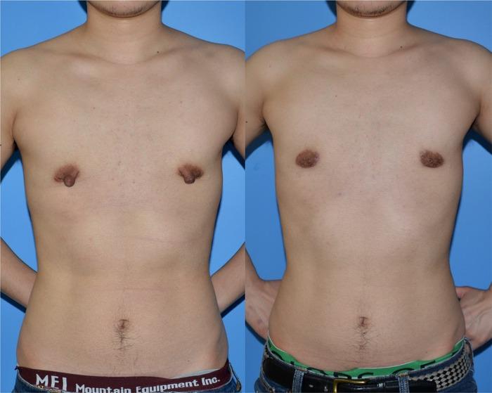 乳輪乳頭縮小術 術後1ヶ月