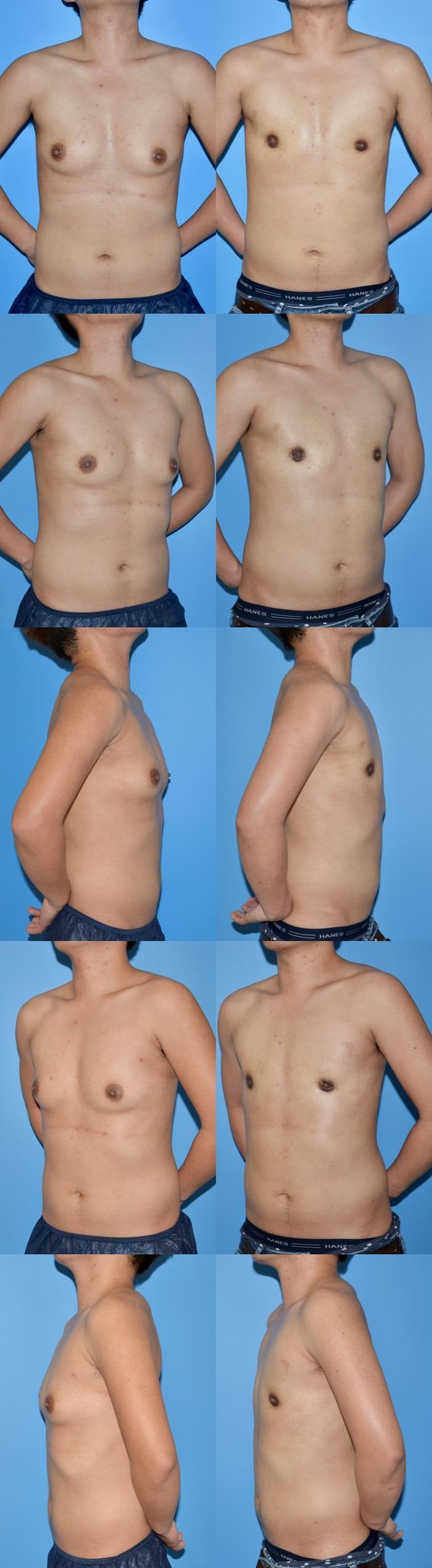 乳腺切除術ns 術後1ヶ月