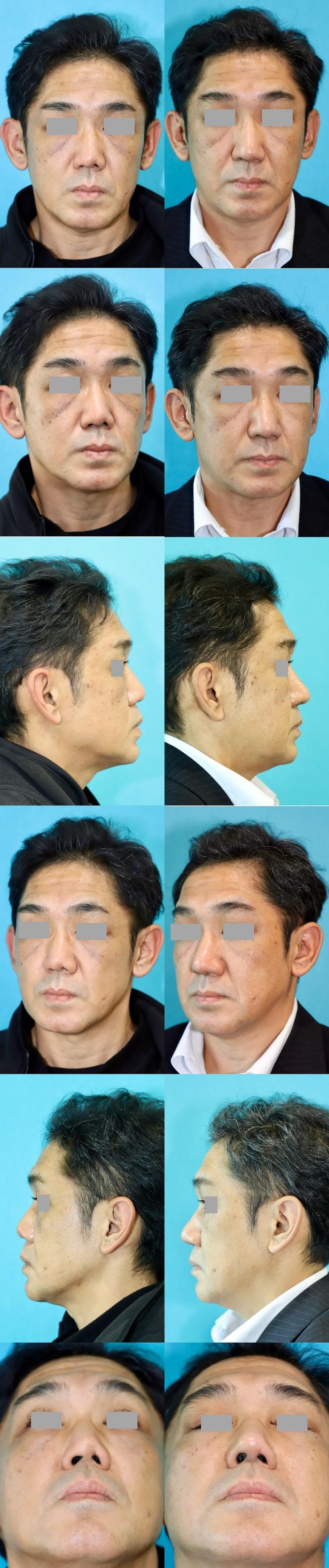 鼻中隔延長術 左鼻孔縁形成術 術後3ヶ月