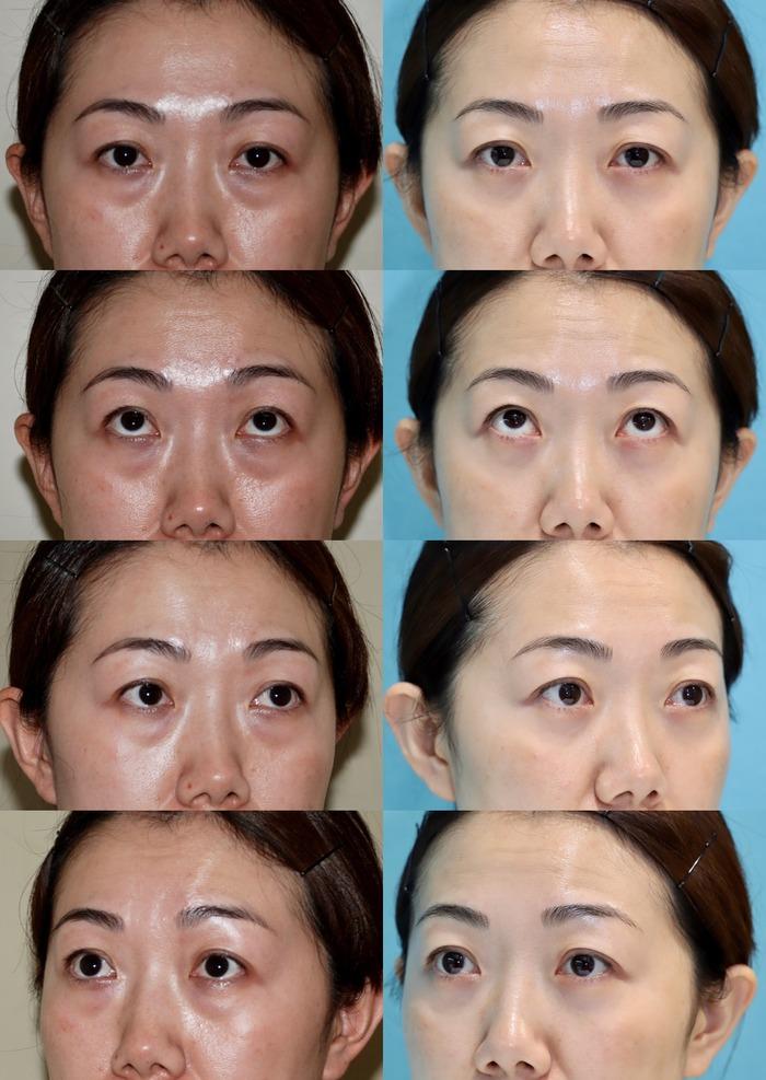 下眼瞼経結膜ハムラ法 術後10ヶ月 モニター