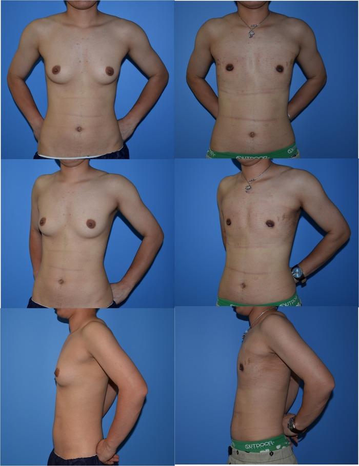 GID乳腺切除術
