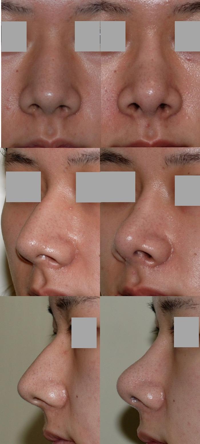鼻骨骨切り術 鼻尖挙上術 鼻尖縮小術 拡大像