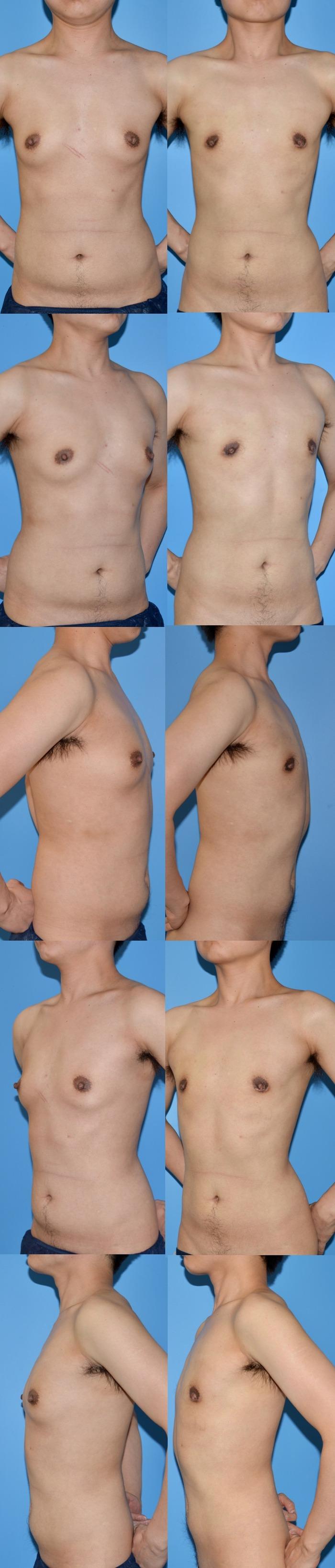乳腺切除術ty 術後3ヶ月