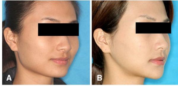 頬骨削り症例