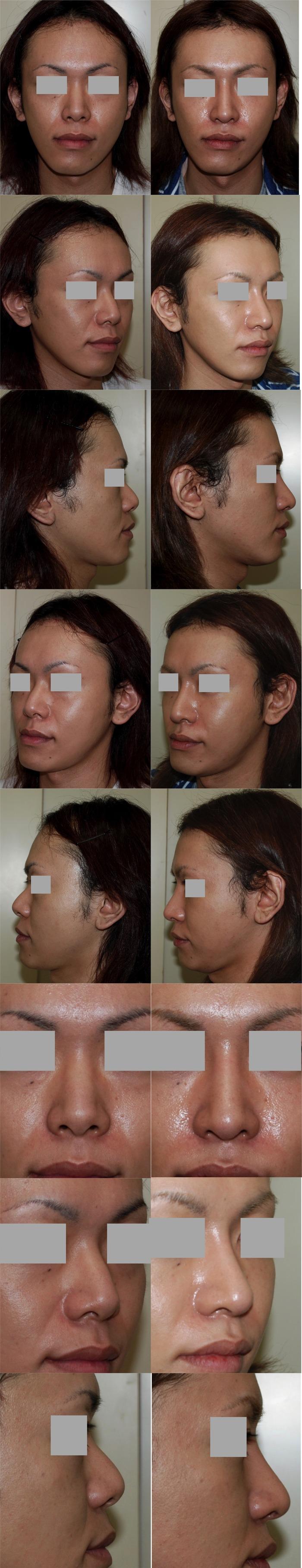 鼻中隔延長術 鼻骨骨切り術 隆鼻術 3ヶ月