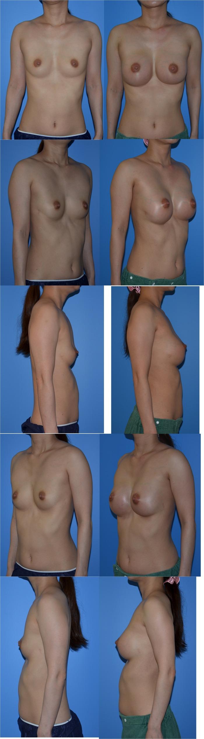 乳房増大術 シリコンバッグ