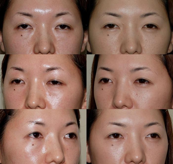 下眼瞼経結膜ハムラ法wk 術後4ヶ月