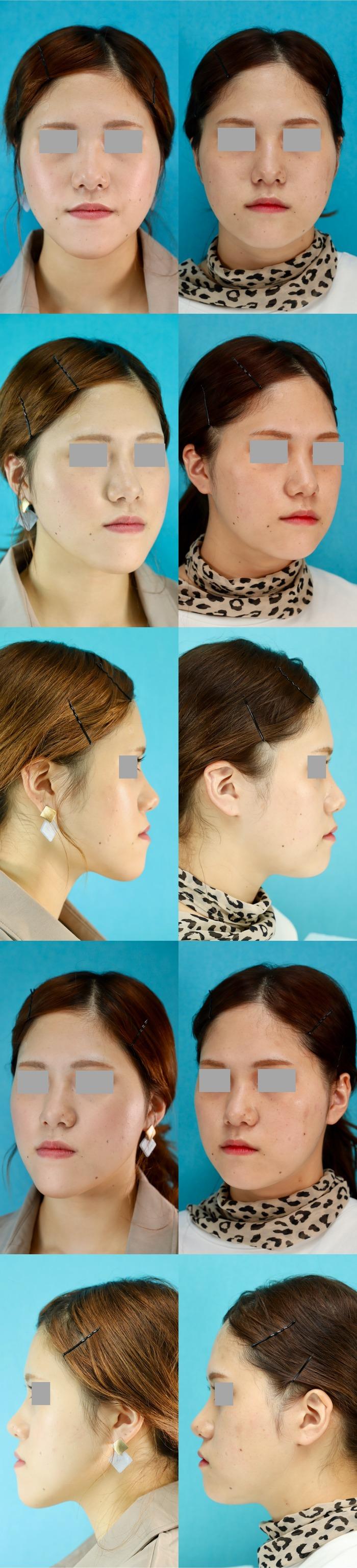 下顎矢状分割術後7ヶ月